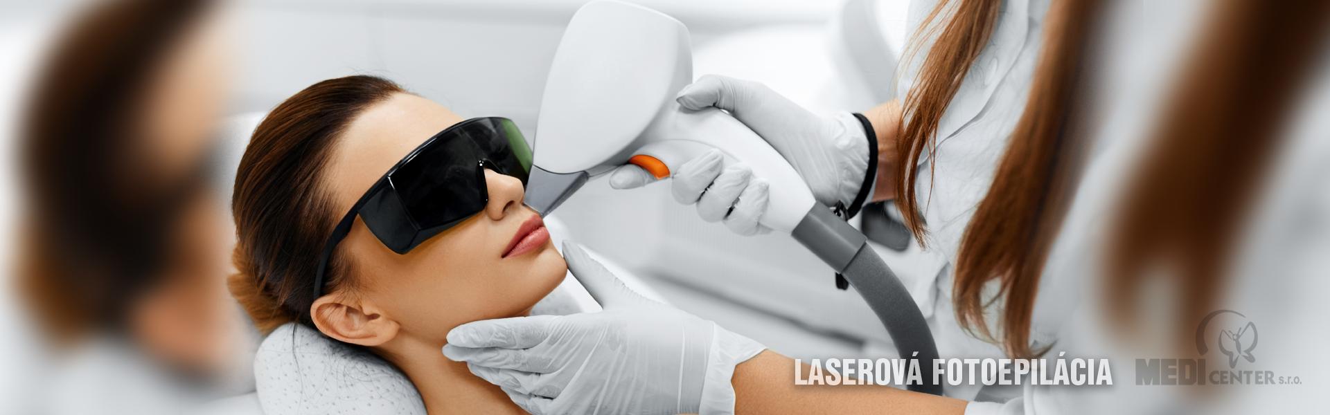 Laserová fotoepilácia