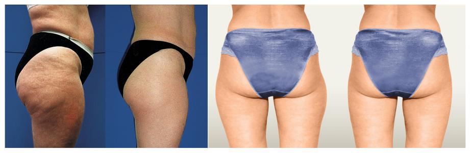 Laserová liposukcia