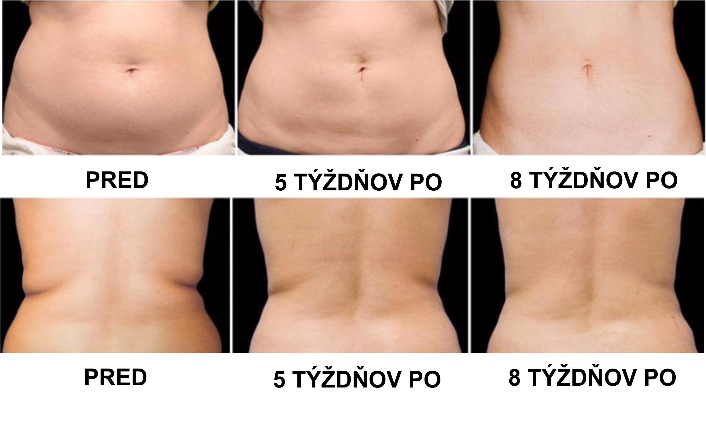 Ultrazvukova liposukcia